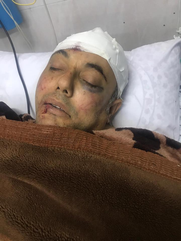 Fatah spokesman 'Atef Abu Sayif in the hospital in Beit Hanoun after he was attacked (official Fatah Facebook page, March 18, 2019).